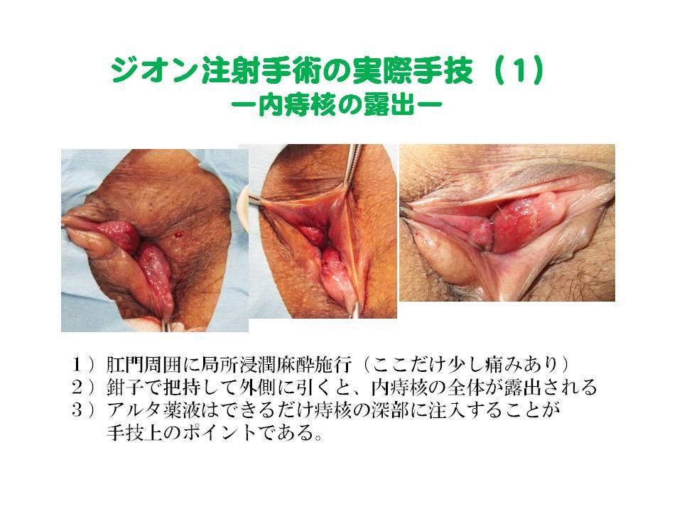 後 ジオン 注射 術 ジオン注射後の排便困難。後遺症