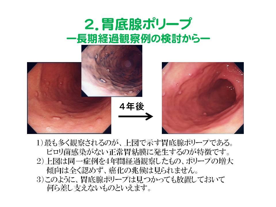 胃 ポリープ